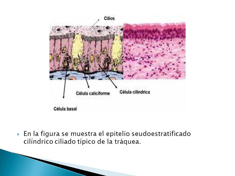 En la figura se muestra el epitelio seudoestratificado cilíndrico ciliado típico de la tráquea.
