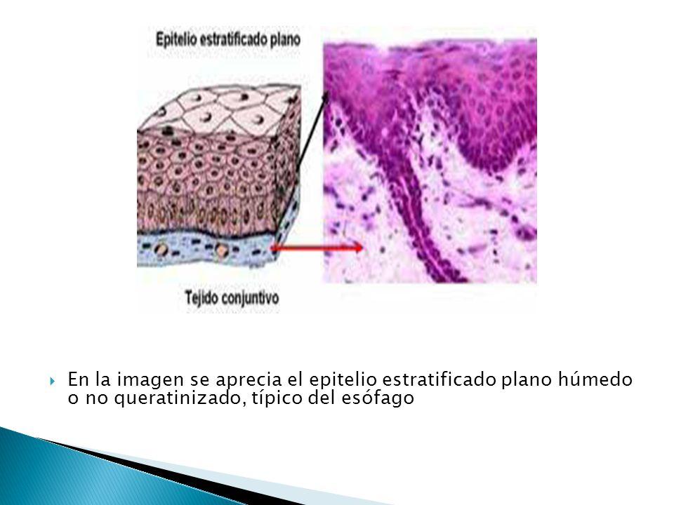 En la imagen se aprecia el epitelio estratificado plano húmedo o no queratinizado, típico del esófago