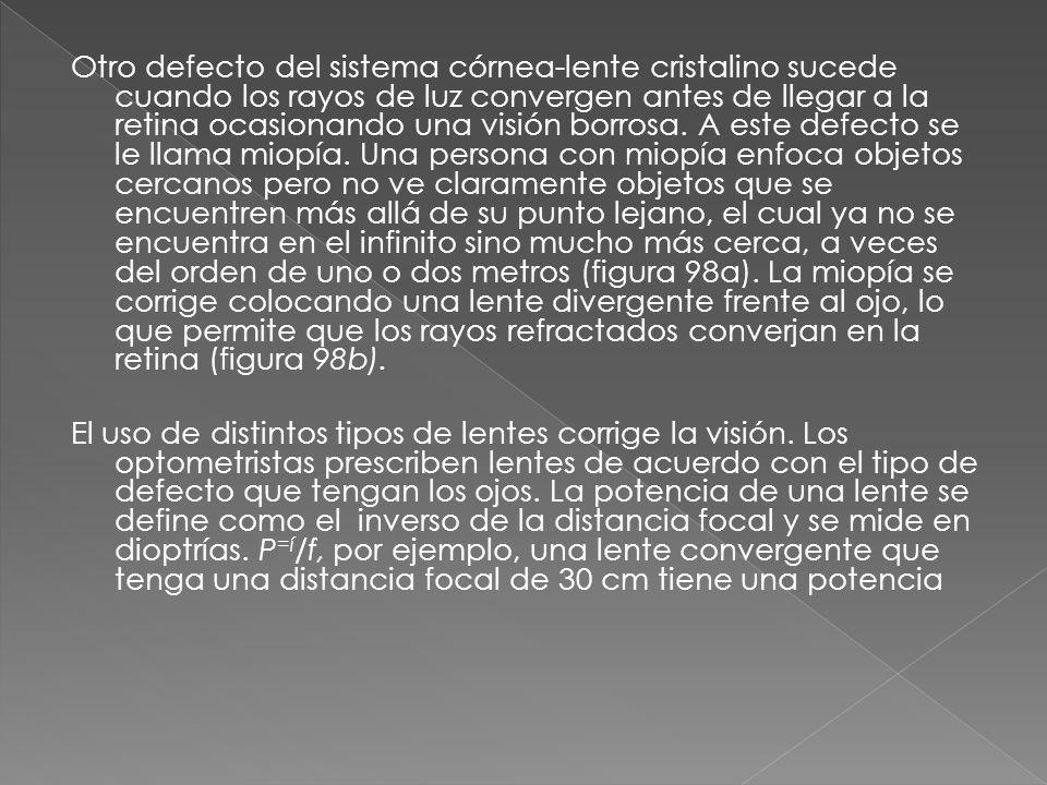 Otro defecto del sistema córnea-lente cristalino sucede cuando los rayos de luz convergen antes de llegar a la retina ocasionando una visión borrosa.