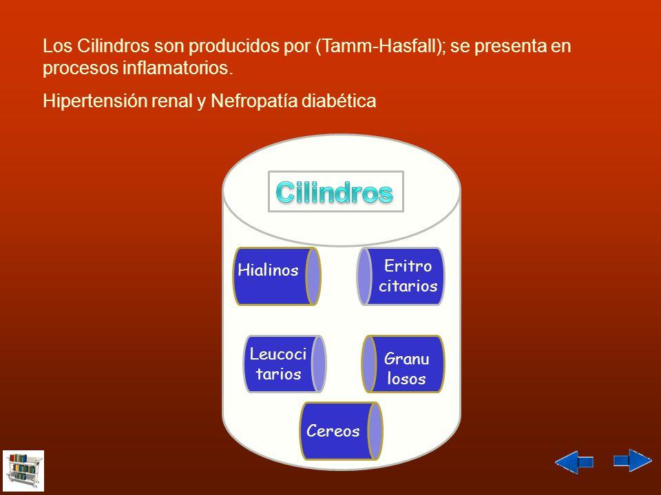 Los Cilindros son producidos por (Tamm-Hasfall); se presenta en procesos inflamatorios. Hipertensión renal y Nefropatía diabética Leucoci tarios Eritr