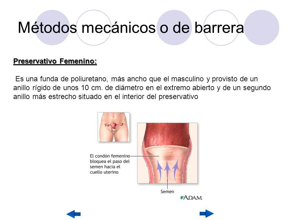 Métodos mecánicos o de barrera Preservativo Femenino: Es una funda de poliuretano, más ancho que el masculino y provisto de un anillo rígido de unos 10 cm.