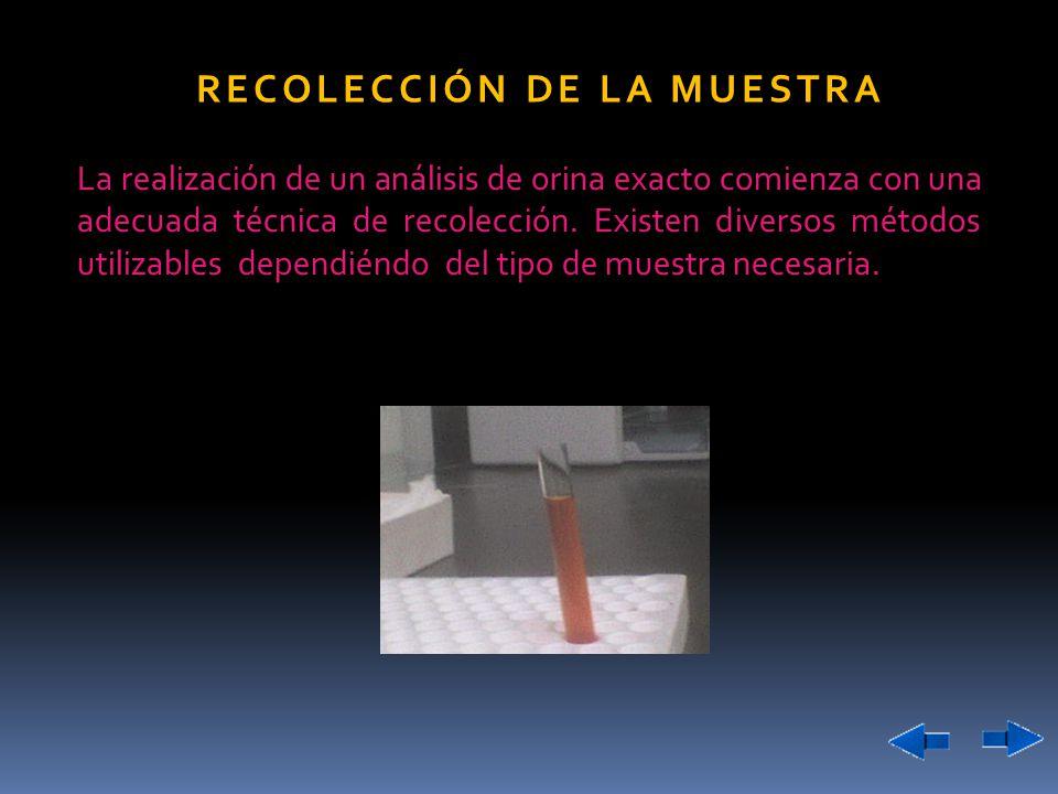La realización de un análisis de orina exacto comienza con una adecuada técnica de recolección. Existen diversos métodos utilizables dependiéndo del t