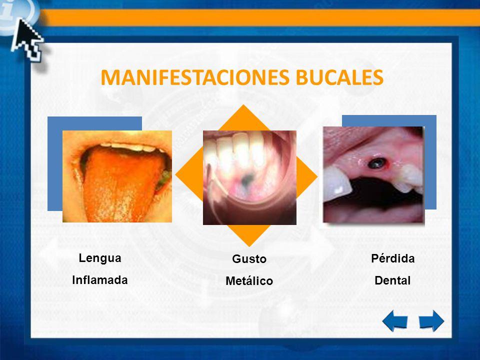 MANIFESTACIONES BUCALES Gusto Metálico Pérdida Dental Lengua Inflamada