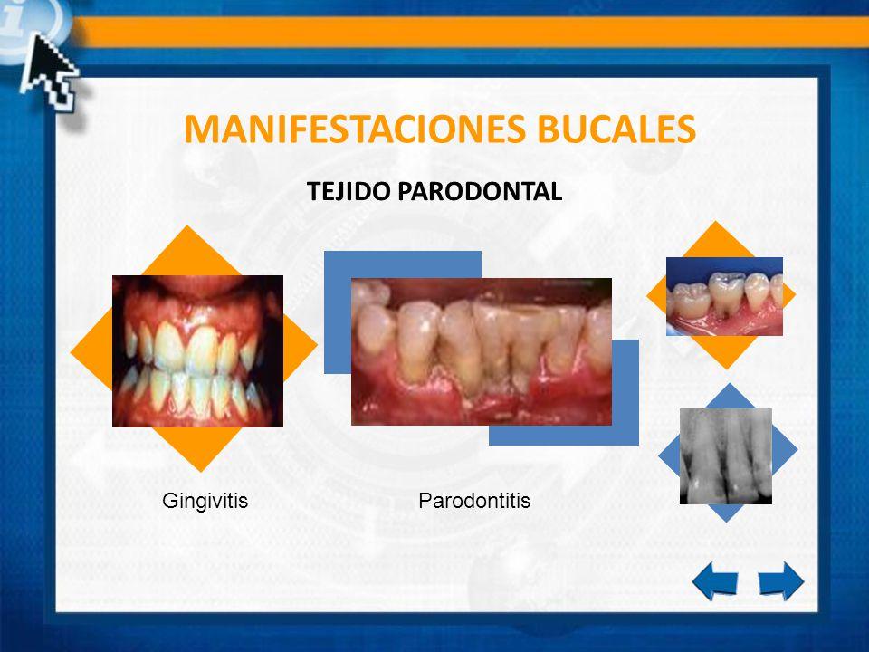 MANIFESTACIONES BUCALES GingivitisParodontitis TEJIDO PARODONTAL