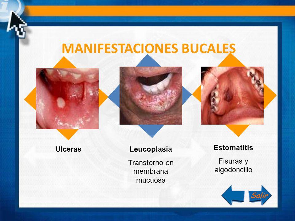 MANIFESTACIONES BUCALES Estomatitis Fisuras y algodoncillo Leucoplasia Transtorno en membrana mucuosa Ulceras Salir
