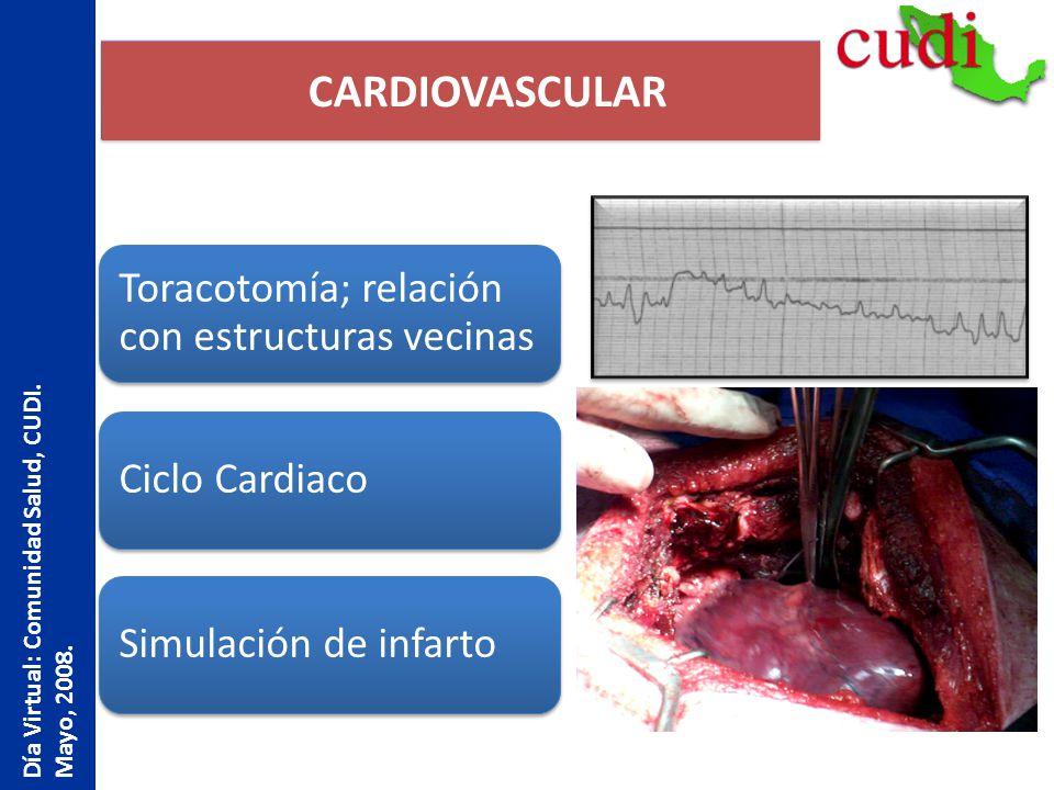 CARDIOVASCULAR Toracotomía; relación con estructuras vecinas Ciclo CardiacoSimulación de infarto Día Virtual: Comunidad Salud, CUDI. Mayo, 2008.