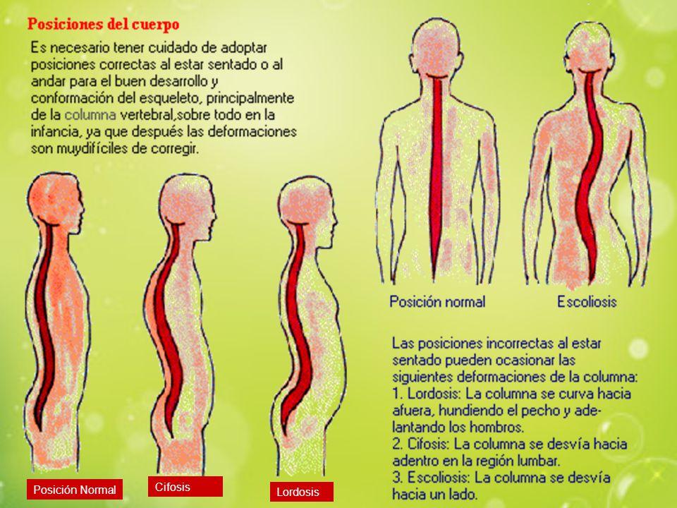 Cifosis Posición Normal Lordosis