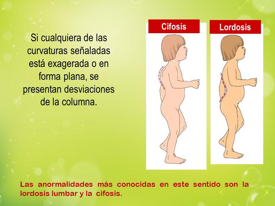 Cifosis Lordosis Las anormalidades más conocidas en este sentido son la lordosis lumbar y la cifosis. Si cualquiera de las curvaturas señaladas está e