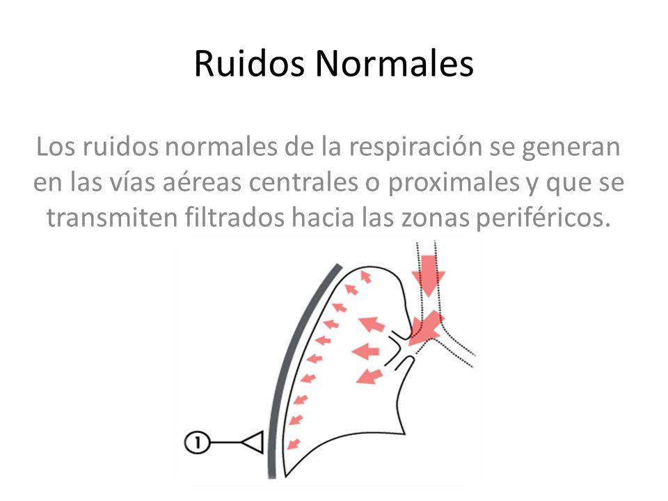 Los ruidos normales de la respiración se generan en las vías aéreas centrales o proximales y que se transmiten filtrados hacia las zonas periféricos.
