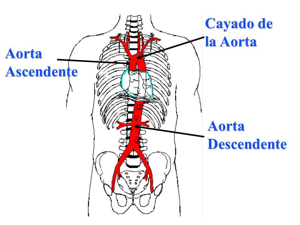 AortaAscendente AortaDescendente Cayado de la Aorta