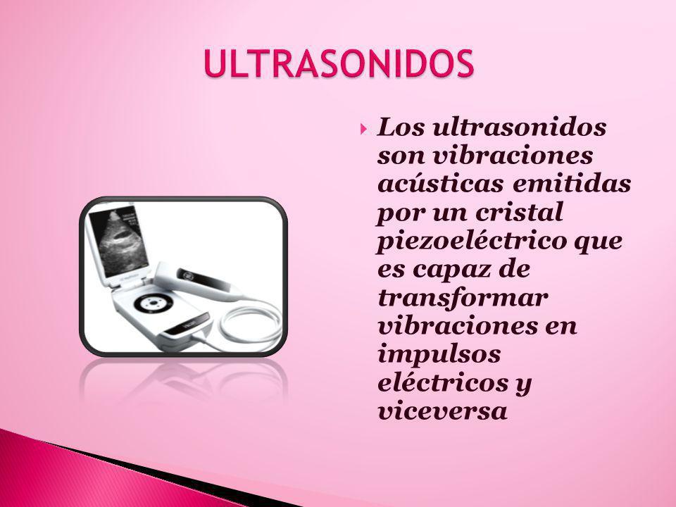 Los ultrasonidos son vibraciones acústicas emitidas por un cristal piezoeléctrico que es capaz de transformar vibraciones en impulsos eléctricos y viceversa