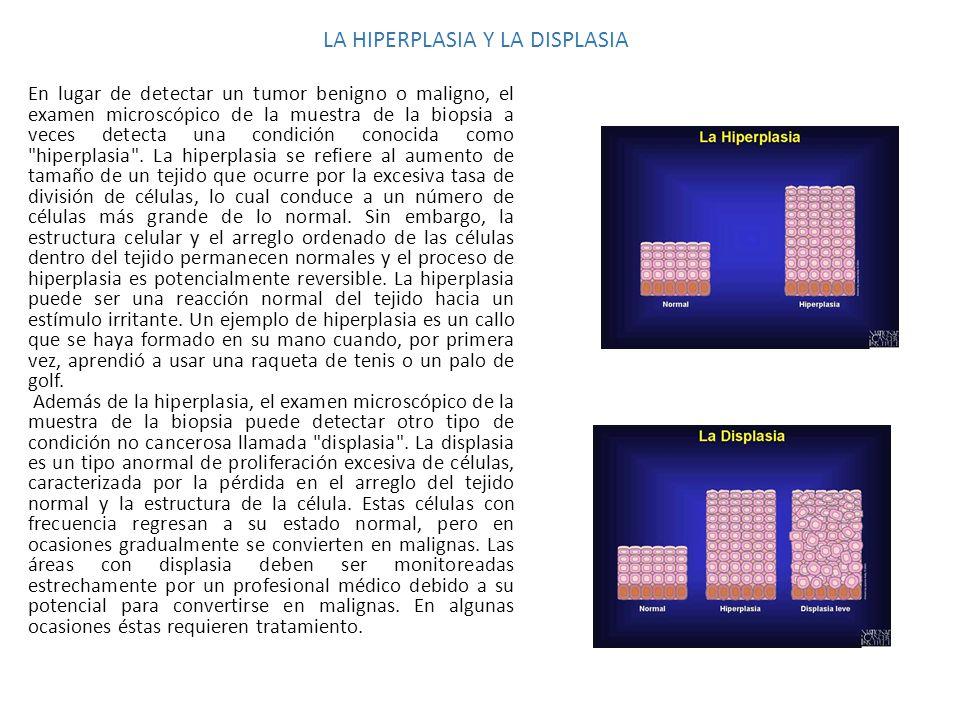 LA HIPERPLASIA Y LA DISPLASIA En lugar de detectar un tumor benigno o maligno, el examen microscópico de la muestra de la biopsia a veces detecta una