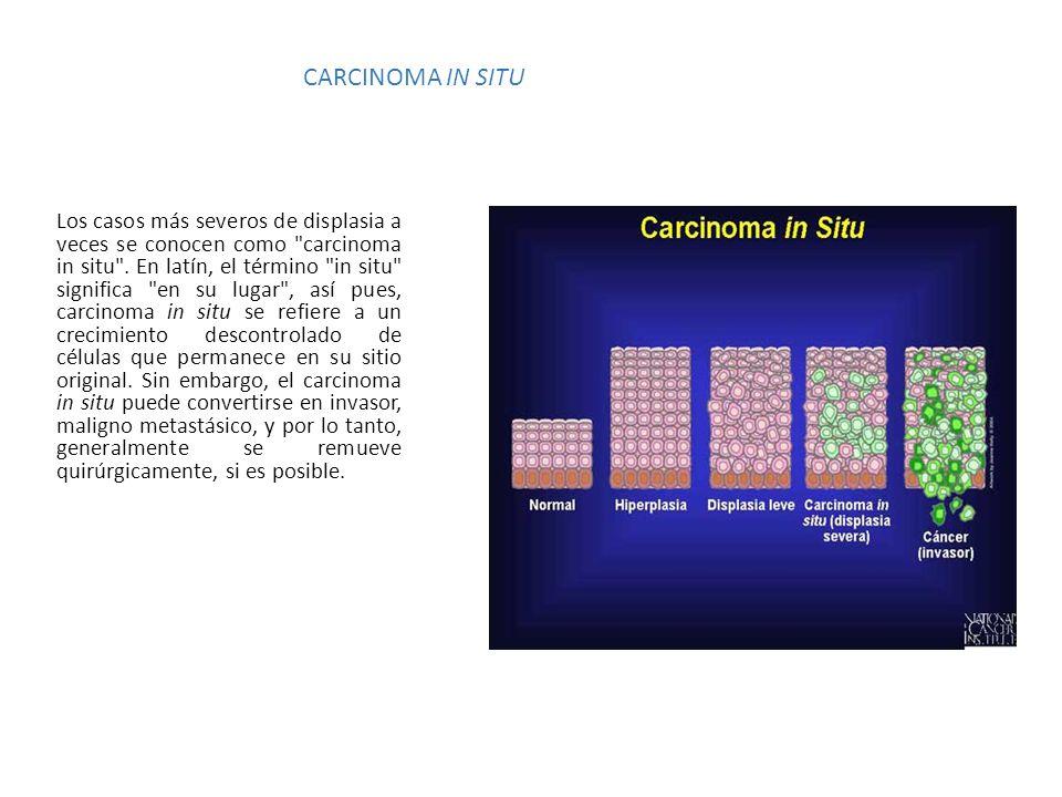 CARCINOMA IN SITU Los casos más severos de displasia a veces se conocen como