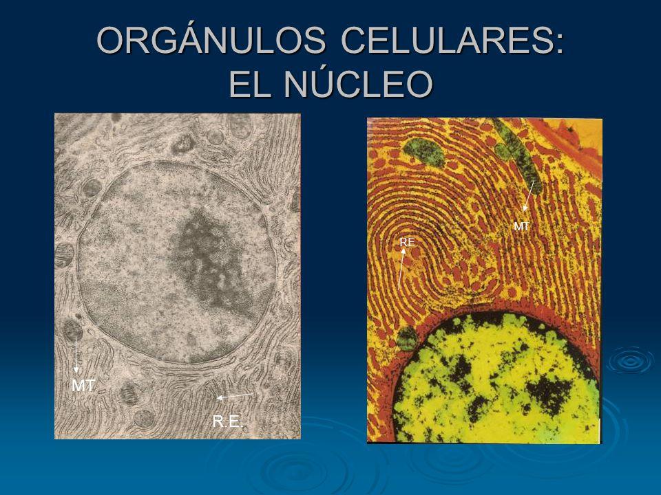 DIFERENTES ASPECTOS DE UNA MISMA COSA MOLÉCULA DE ADN CROMOSOMA ( ADN + PROTEINAS )