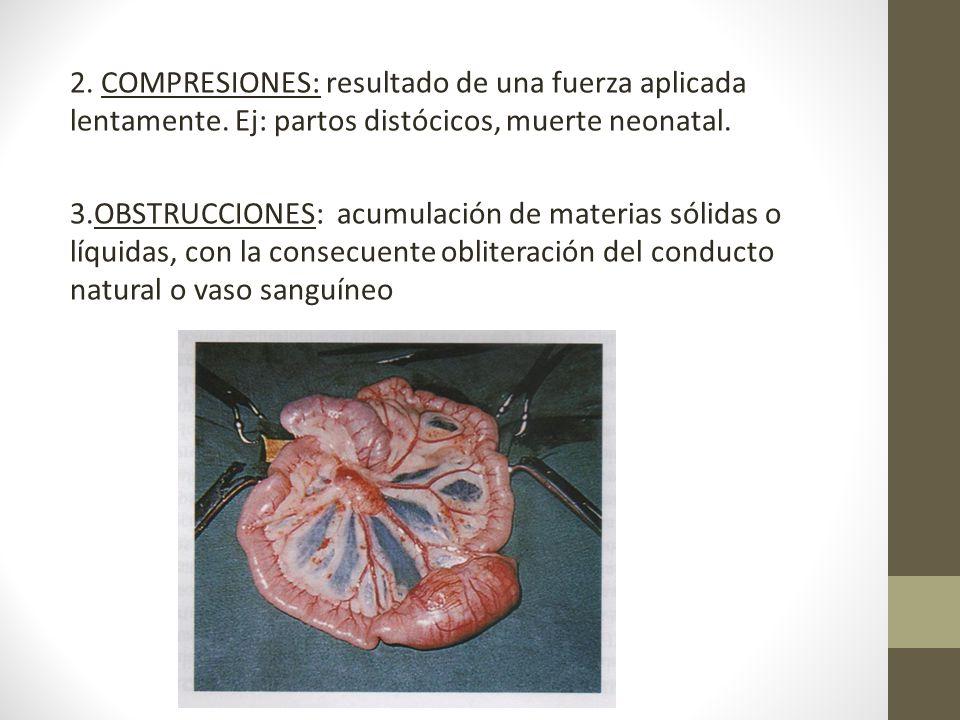 2. COMPRESIONES: resultado de una fuerza aplicada lentamente. Ej: partos distócicos, muerte neonatal. 3.OBSTRUCCIONES: acumulación de materias sólidas