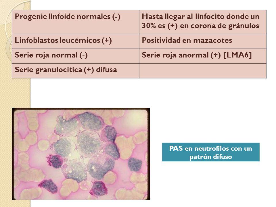 Progenie linfoide normales (-)Hasta llegar al linfocito donde un 30% es (+) en corona de gránulos Linfoblastos leucémicos (+)Positividad en mazacotes