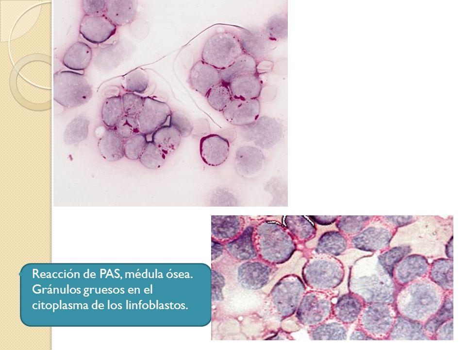 Reacción de PAS, médula ósea. Gránulos gruesos en el citoplasma de los linfoblastos.