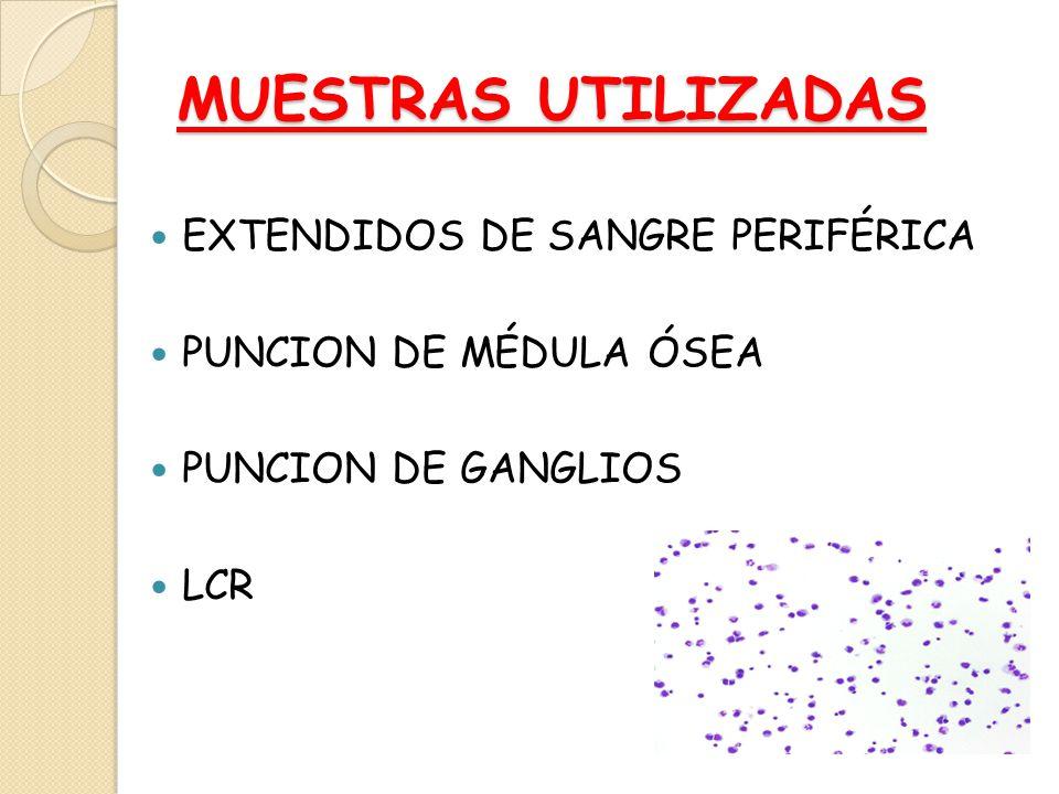 MUESTRAS UTILIZADAS EXTENDIDOS DE SANGRE PERIFÉRICA PUNCION DE MÉDULA ÓSEA PUNCION DE GANGLIOS LCR