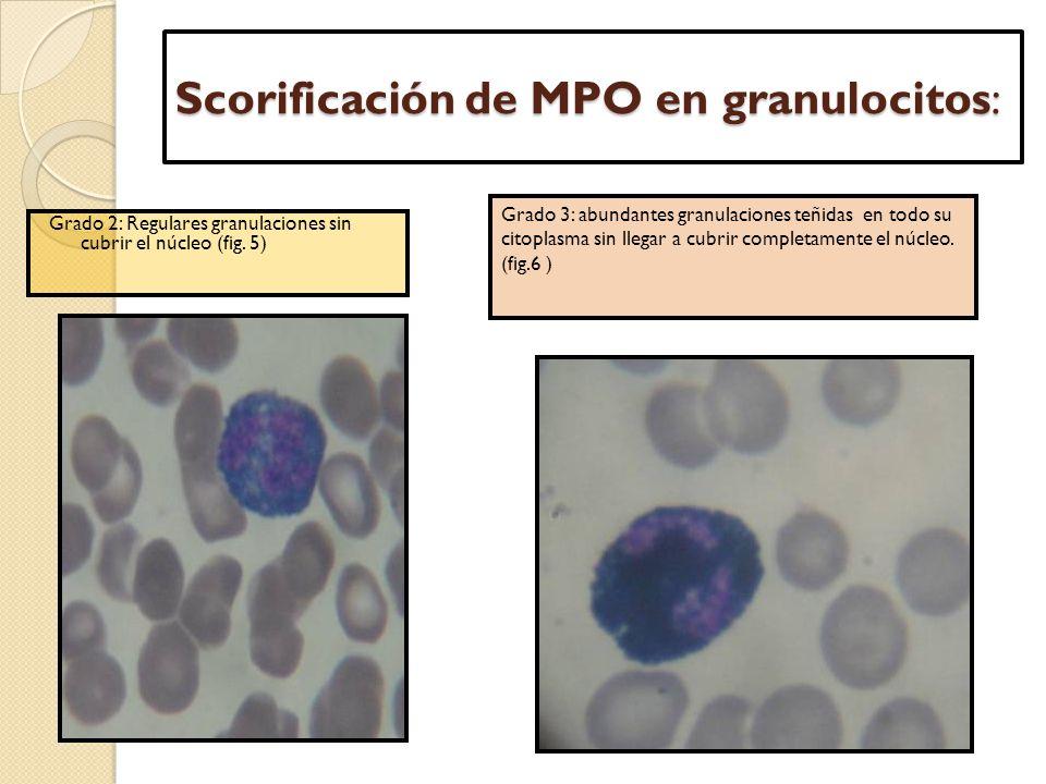Scorificación de MPO en granulocitos: Grado 2: Regulares granulaciones sin cubrir el núcleo (fig. 5) Grado 3: abundantes granulaciones teñidas en todo