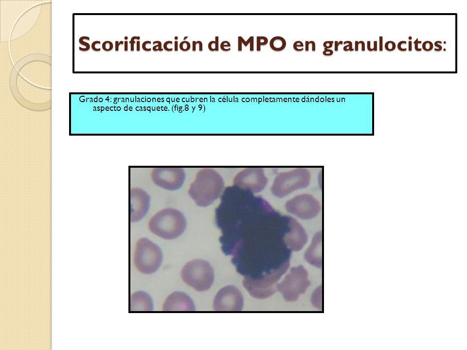 Scorificación de MPO en granulocitos: Grado 4: granulaciones que cubren la célula completamente dándoles un aspecto de casquete. (fig.8 y 9)