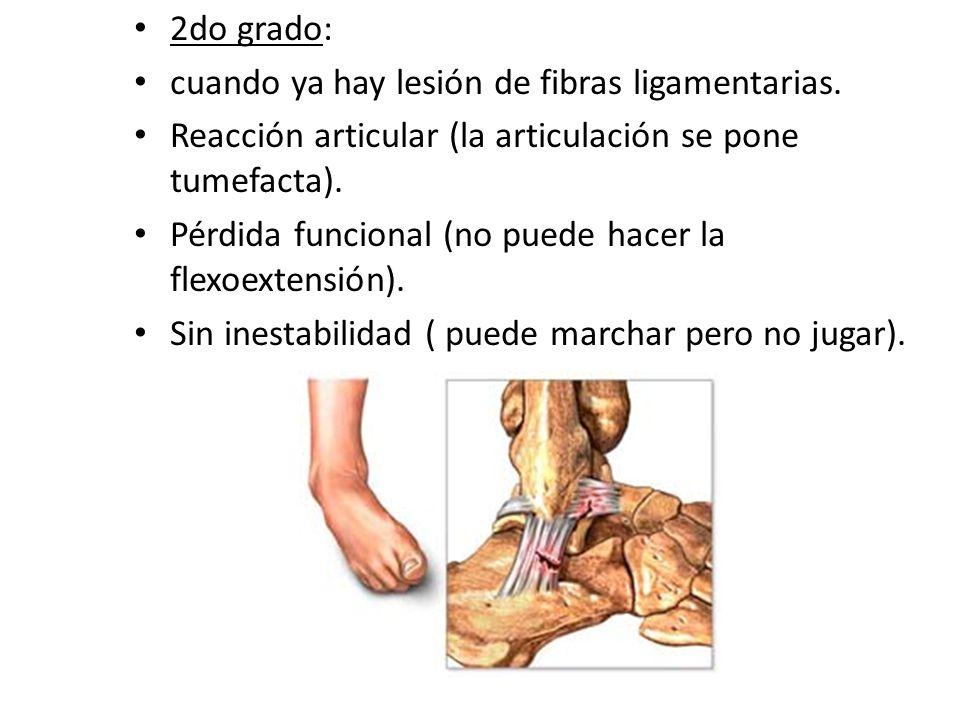 2do grado: cuando ya hay lesión de fibras ligamentarias. Reacción articular (la articulación se pone tumefacta). Pérdida funcional (no puede hacer la