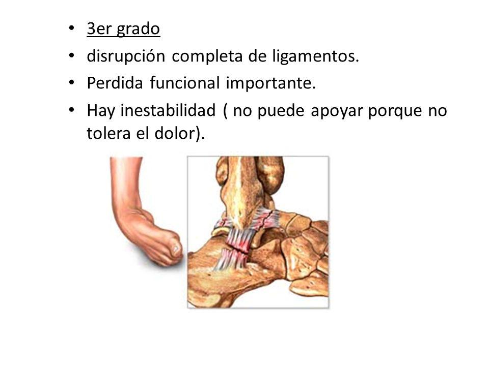 3er grado disrupción completa de ligamentos. Perdida funcional importante. Hay inestabilidad ( no puede apoyar porque no tolera el dolor).