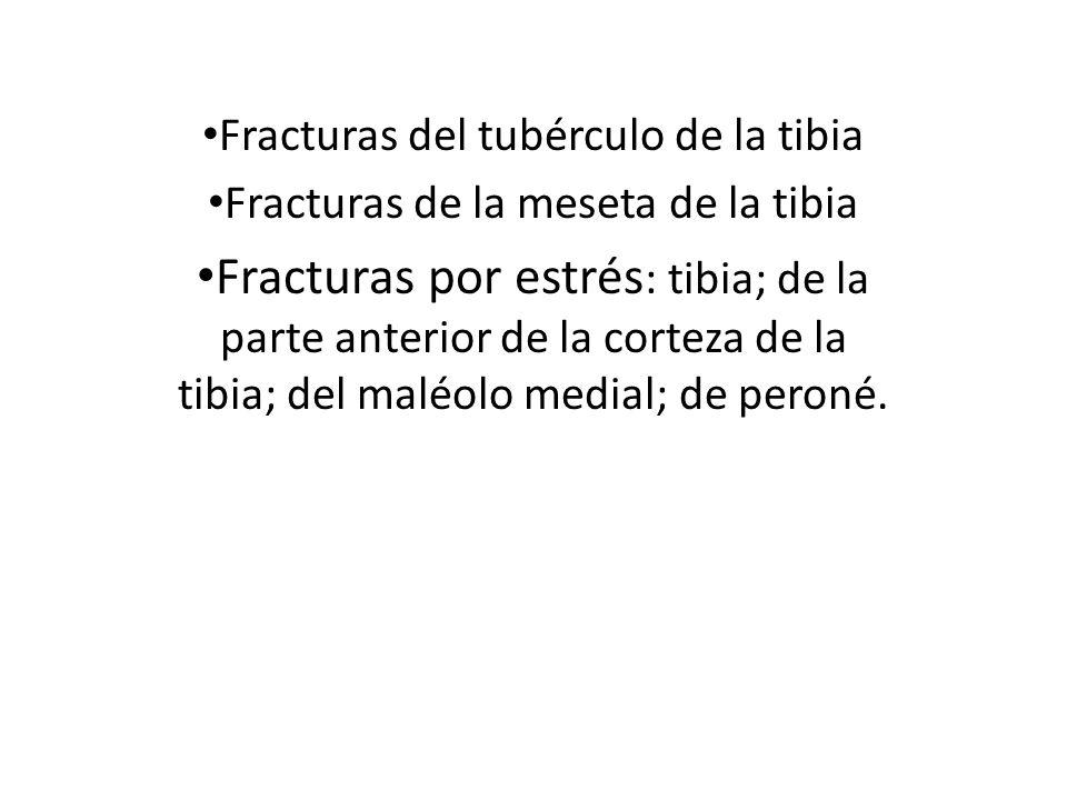 Fracturas del tubérculo de la tibia Fracturas de la meseta de la tibia Fracturas por estrés : tibia; de la parte anterior de la corteza de la tibia; d