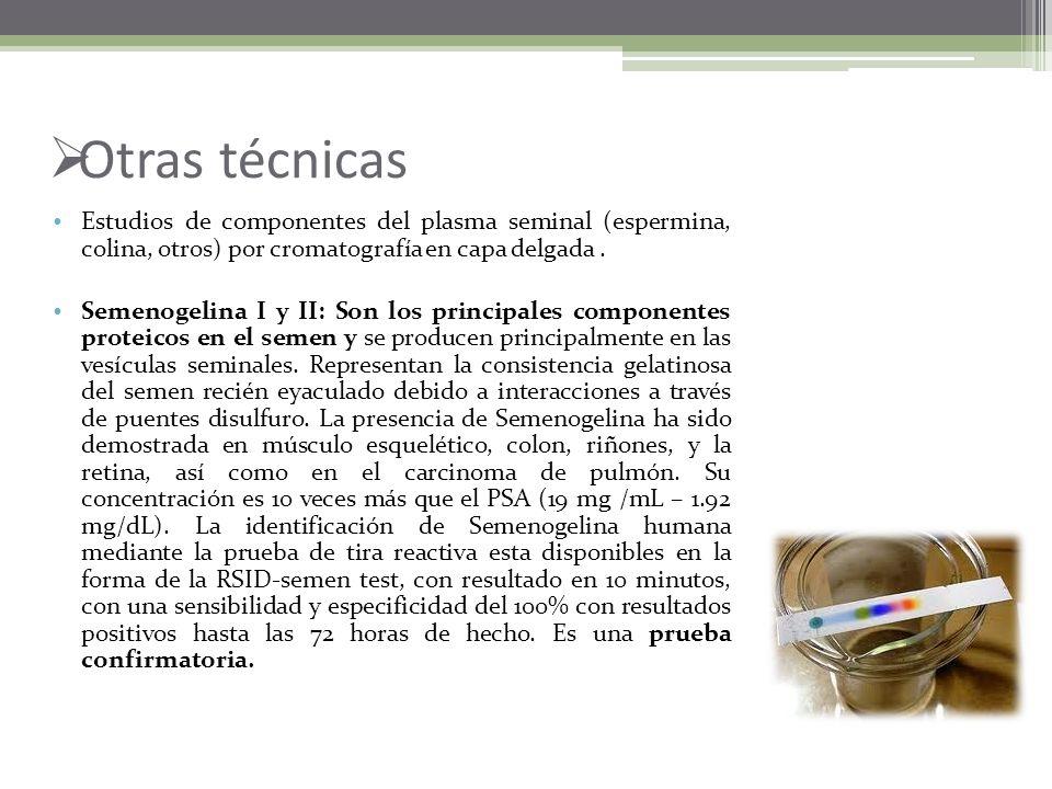 Antígeno Prostático Específico Glicoproteína producida por las células epiteliales prostáticas. Sólo esta presente en muy bajas concentraciones en alg