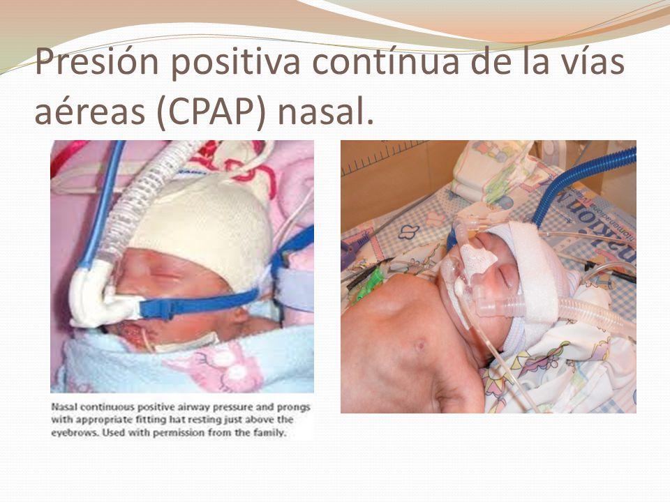 Presión positiva contínua de la vías aéreas (CPAP) nasal.