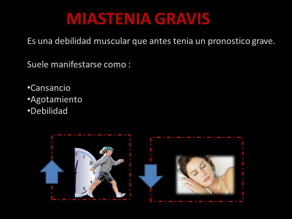 MIASTENIA GRAVIS Es una debilidad muscular que antes tenia un pronostico grave.