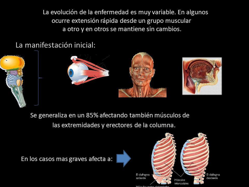 En los casos mas graves afecta a: La evolución de la enfermedad es muy variable.