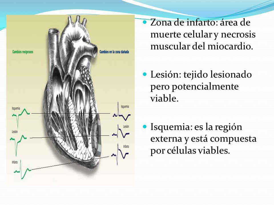 Zona de infarto: área de muerte celular y necrosis muscular del miocardio.