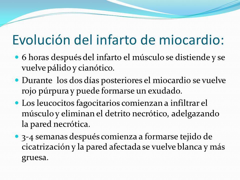 Evolución del infarto de miocardio: 6 horas después del infarto el músculo se distiende y se vuelve pálido y cianótico.