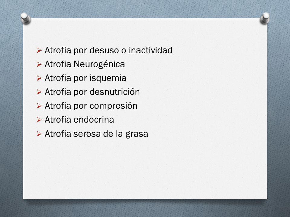Atrofia por desuso o inactividad Atrofia Neurogénica Atrofia por isquemia Atrofia por desnutrición Atrofia por compresión Atrofia endocrina Atrofia se