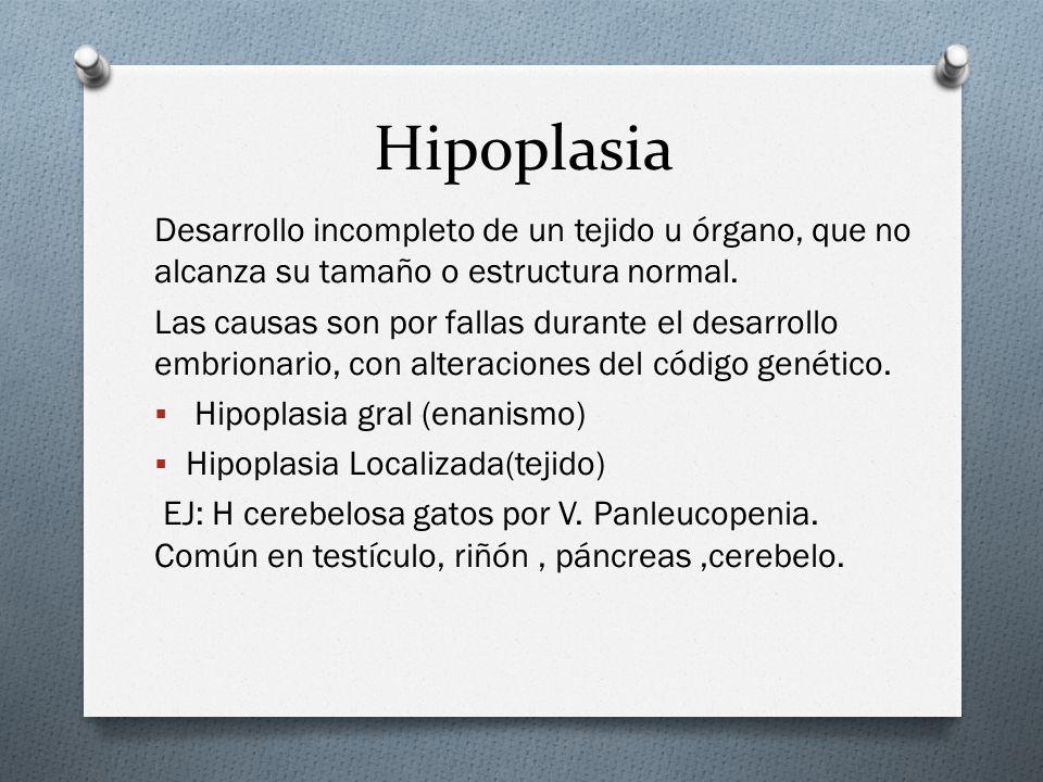 Hipoplasia Desarrollo incompleto de un tejido u órgano, que no alcanza su tamaño o estructura normal. Las causas son por fallas durante el desarrollo