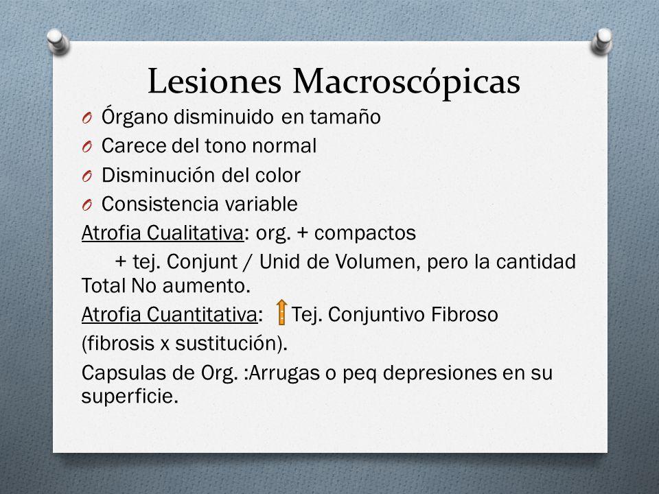 Lesiones Macroscópicas O Órgano disminuido en tamaño O Carece del tono normal O Disminución del color O Consistencia variable Atrofia Cualitativa: org