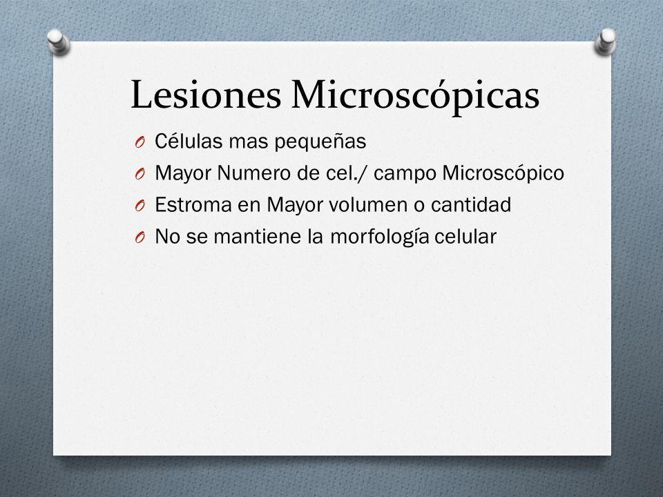 Lesiones Microscópicas O Células mas pequeñas O Mayor Numero de cel./ campo Microscópico O Estroma en Mayor volumen o cantidad O No se mantiene la mor