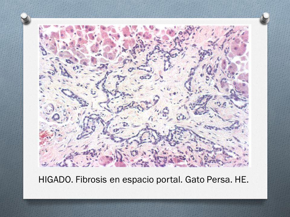 HIGADO. Fibrosis en espacio portal. Gato Persa. HE.
