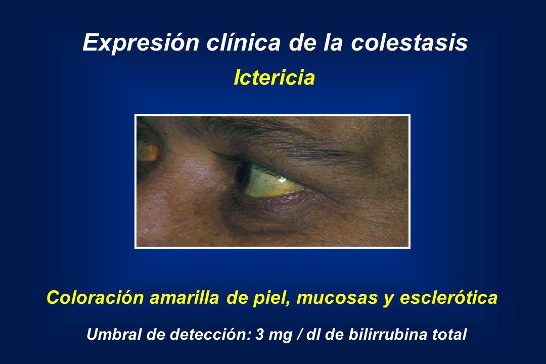 Expresión clínica de la colestasis Coloración amarilla de piel, mucosas y esclerótica Umbral de detección: 3 mg / dl de bilirrubina total Ictericia