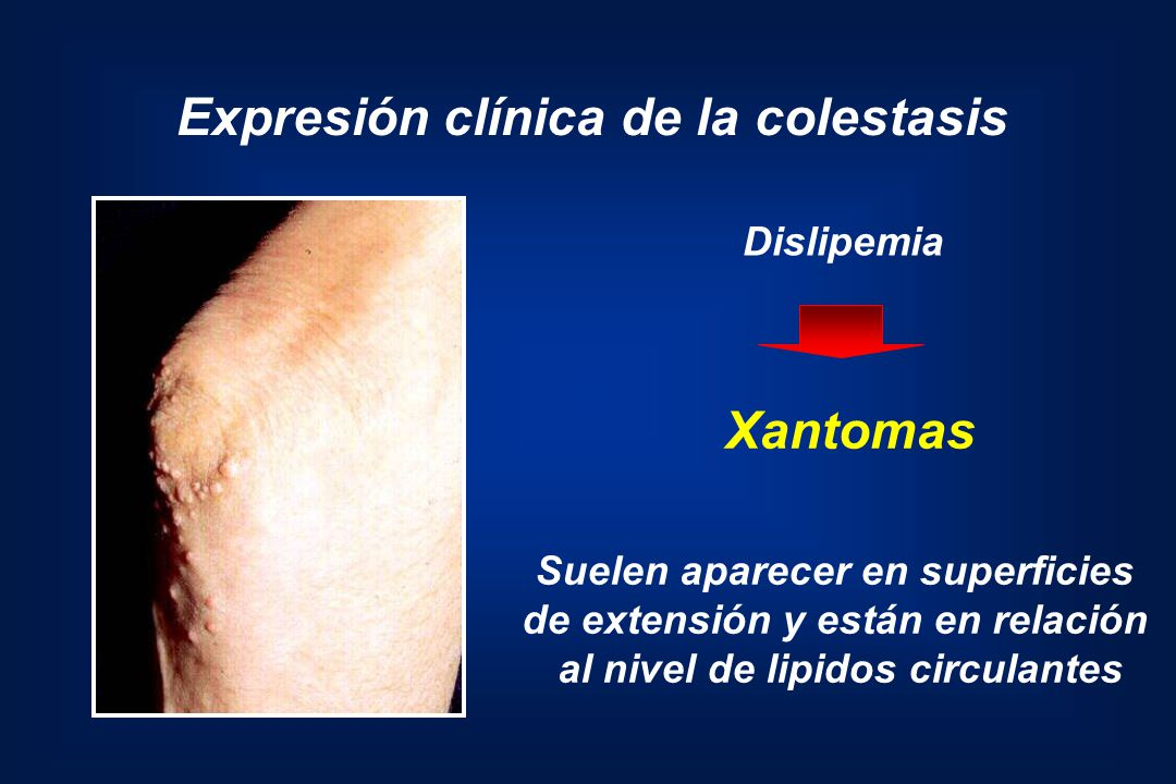 Expresión clínica de la colestasis Xantomas Suelen aparecer en superficies de extensión y están en relación al nivel de lipidos circulantes Dislipemia