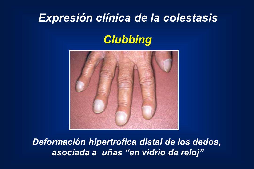 Clubbing Deformación hipertrofica distal de los dedos, asociada a uñas en vidrio de reloj Expresión clínica de la colestasis