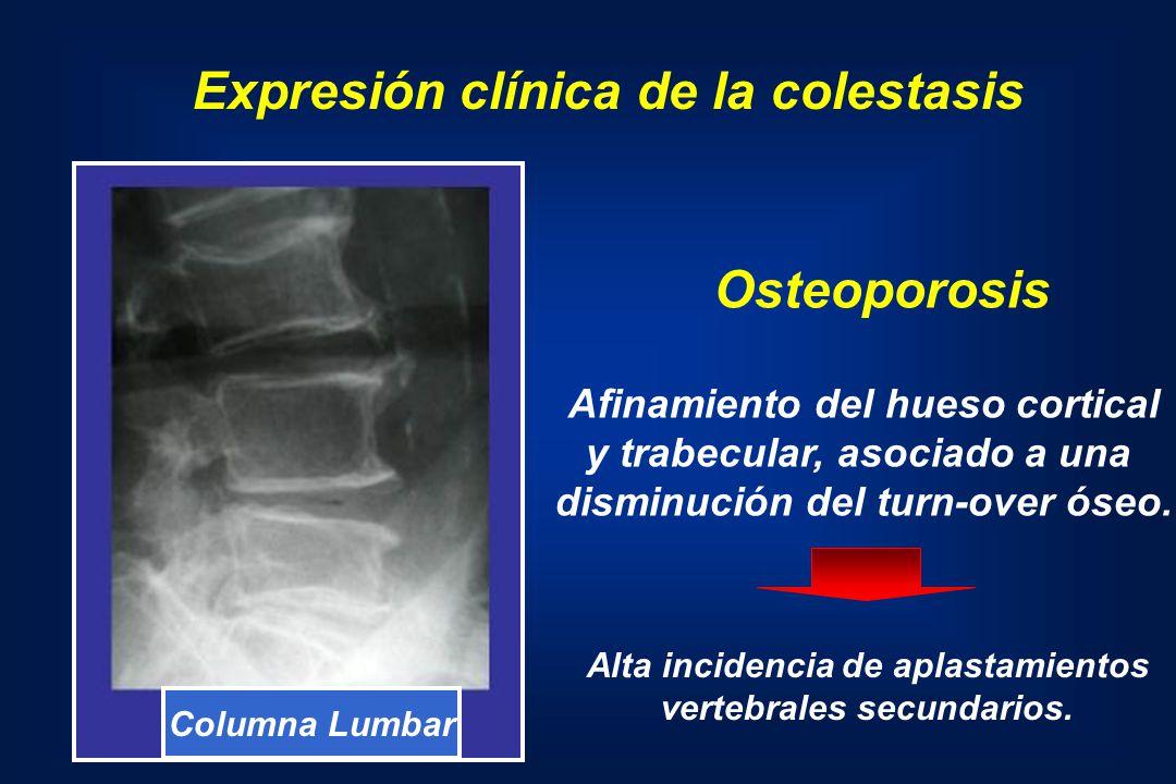 Columna Lumbar Afinamiento del hueso cortical y trabecular, asociado a una disminución del turn-over óseo. Osteoporosis Expresión clínica de la colest