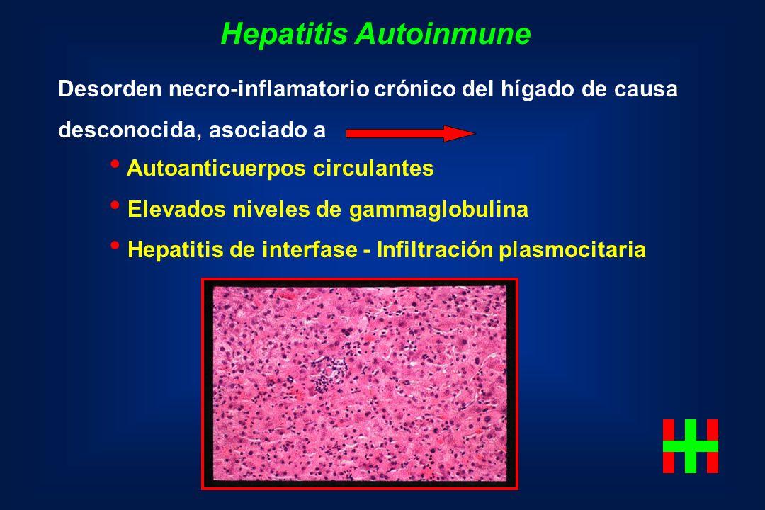 Hepatitis Autoinmune Desorden necro-inflamatorio crónico del hígado de causa desconocida, asociado a Autoanticuerpos circulantes Elevados niveles de g