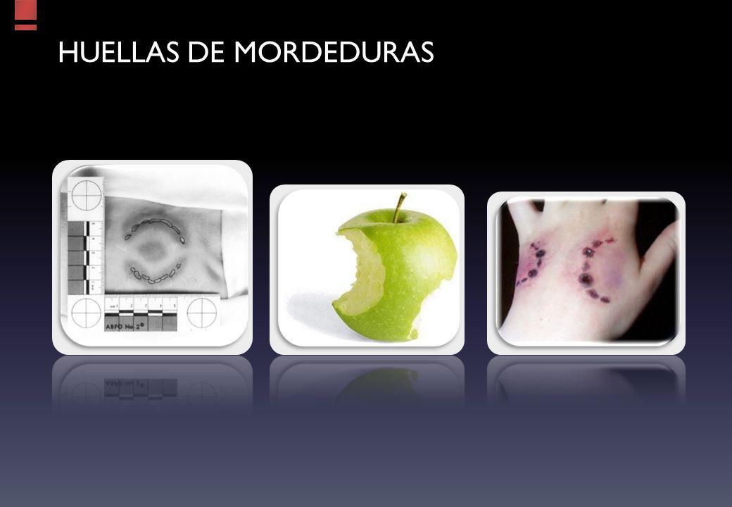 HUELLAS DE MORDEDURAS