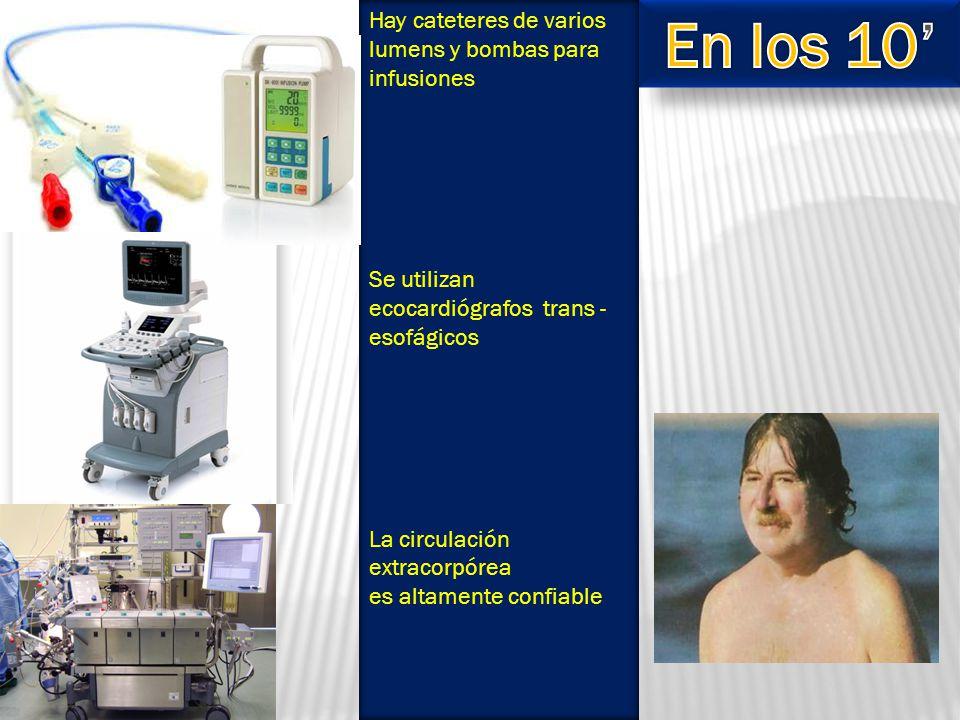 Hay cateteres de varios lumens y bombas para infusiones Se utilizan ecocardiógrafos trans - esofágicos La circulación extracorpórea es altamente confiable