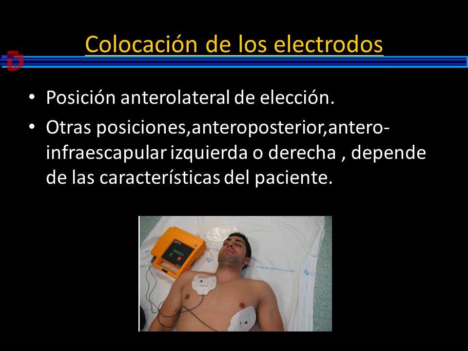 Colocación de los electrodos Posición anterolateral de elección. Otras posiciones,anteroposterior,antero- infraescapular izquierda o derecha, depende