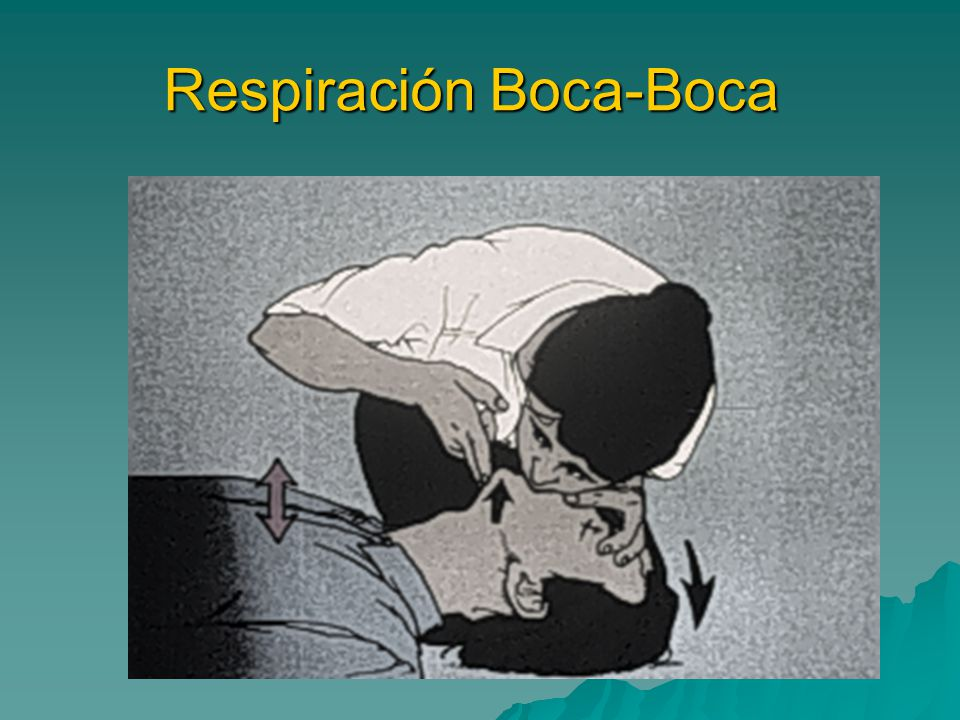 Respiración Boca-Boca
