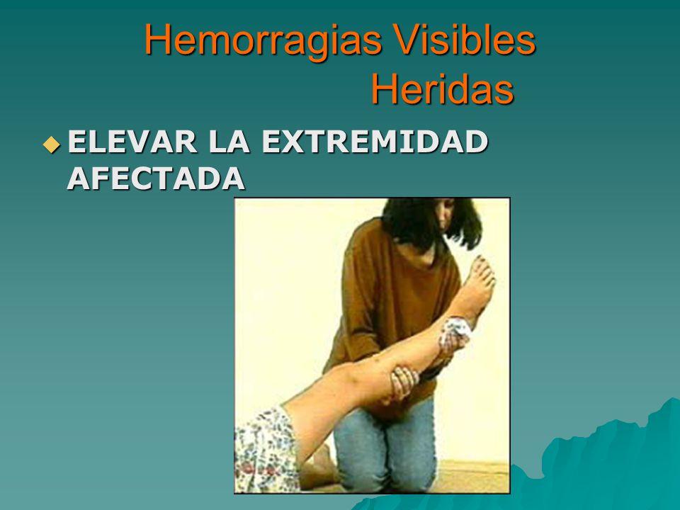 Hemorragias Visibles Heridas ELEVAR LA EXTREMIDAD AFECTADA ELEVAR LA EXTREMIDAD AFECTADA