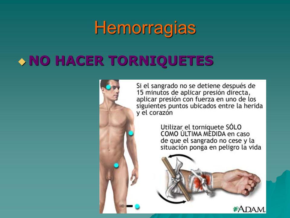 Hemorragias NO HACER TORNIQUETES NO HACER TORNIQUETES