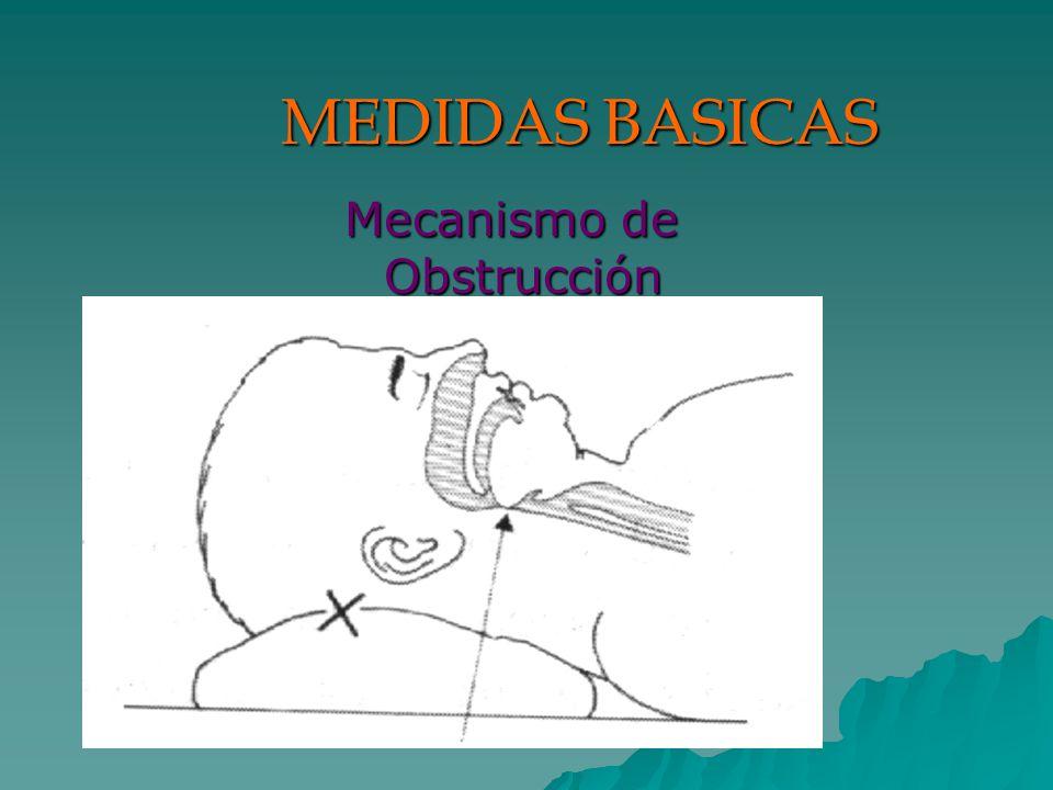 MEDIDAS BASICAS Mecanismo de Obstrucción